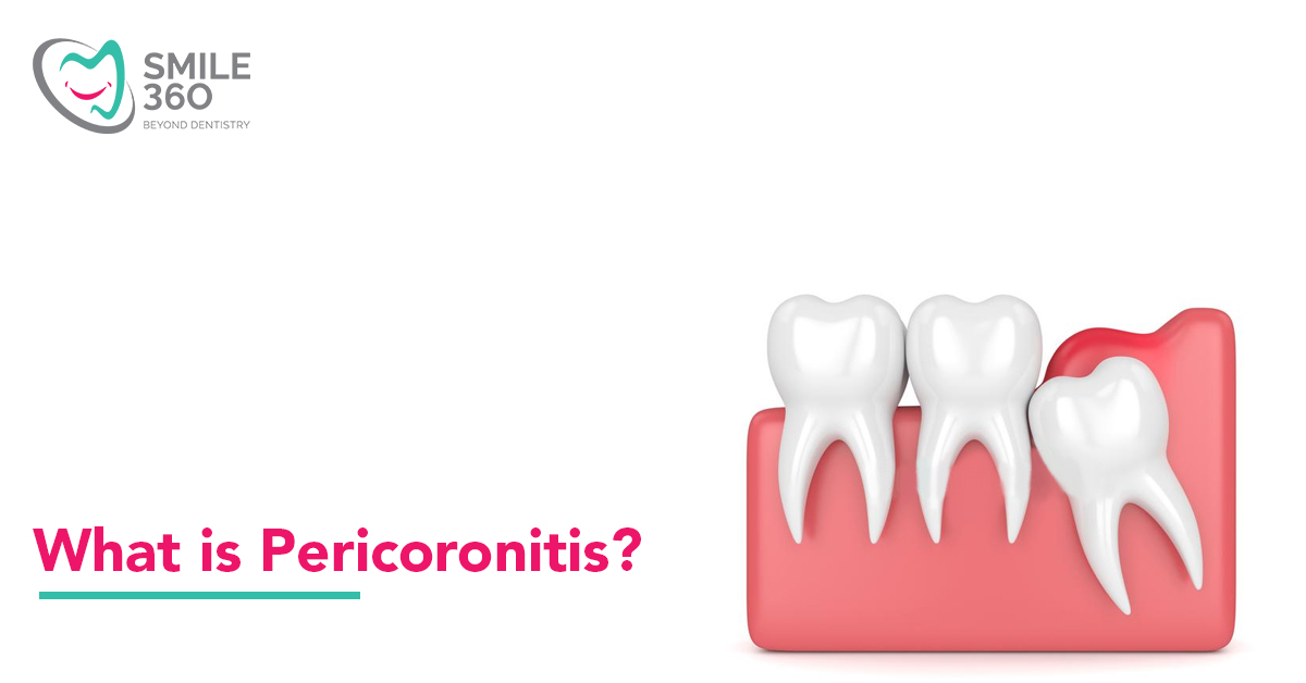 Pericoronitis: Pain in the third molar