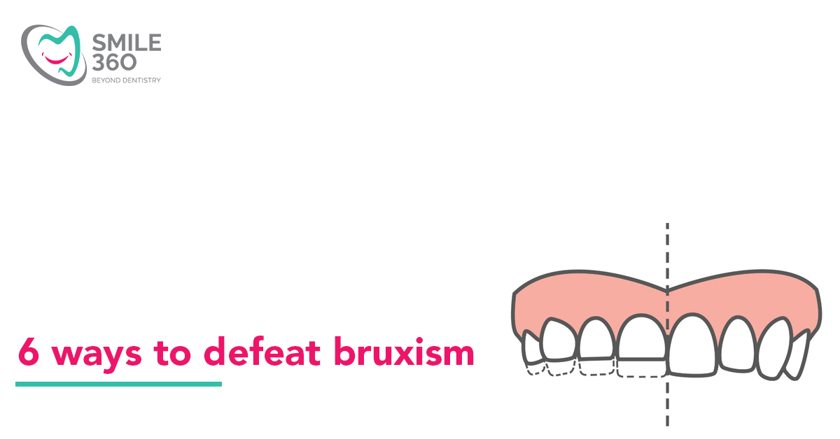 Six ways to defeat Bruxism