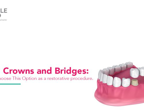 Dental Crowns and Bridges: When do I choose This Option as a restorative procedure.