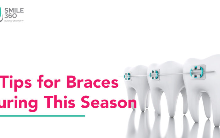 4 Tips for your braces