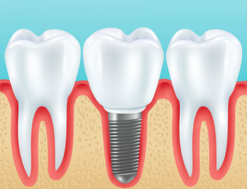 Dental Implants  : How Much Do They Cost In Nigeria?
