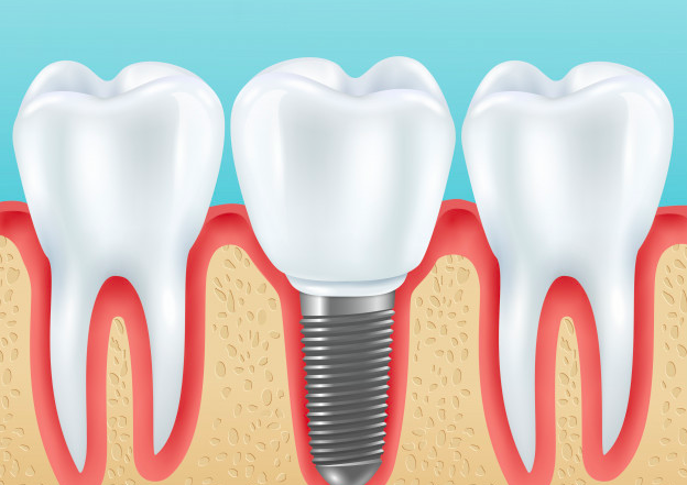 Dental Implants- Smile360 Dental Clinic
