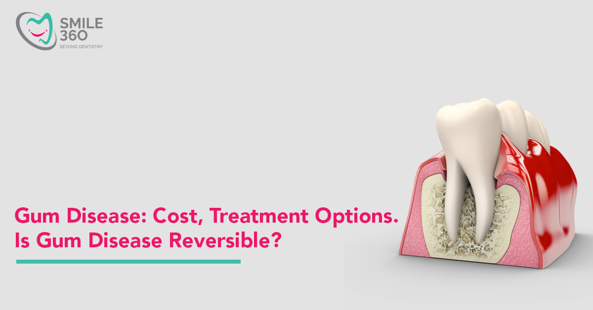 Cost of treating gum disease