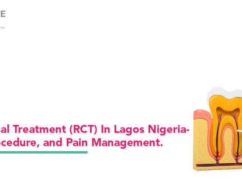 Root Canal Treatment (RCT) In Lagos Nigeria – Cost, Procedure, and Pain Management.