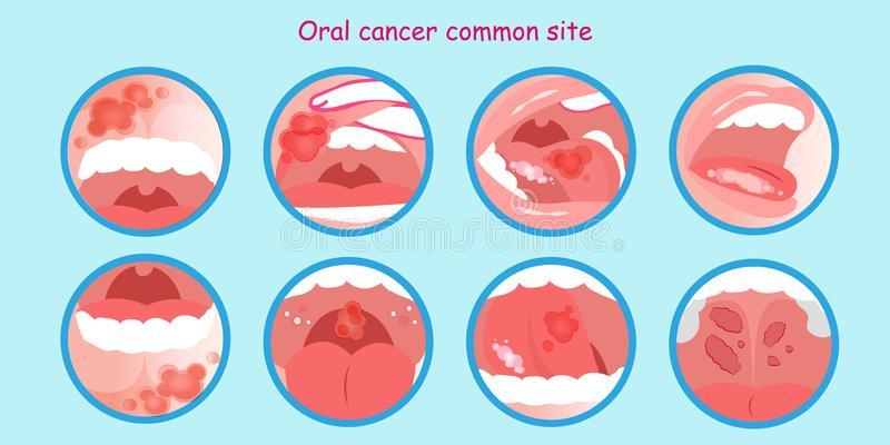 OralCancer
