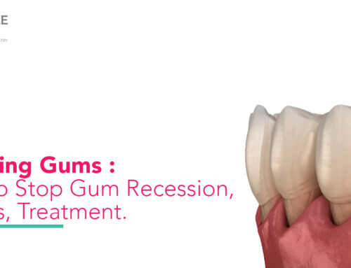 Receding Gums : How To Stop Gum Recession, Causes, Treatment.